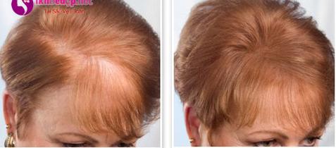 Giúp tóc mọc nhanh hơn và mềm mượt hơn
